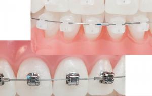 Aparelho-ortodontico-autoligado