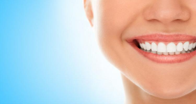 Lentes de contato dental: Para quem são indicadas