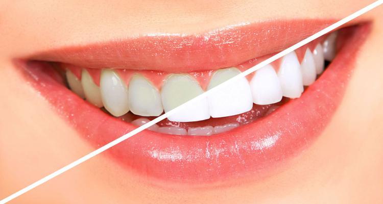 Clareamento Dental Conheca Os Principais Tipos Atelie Facial