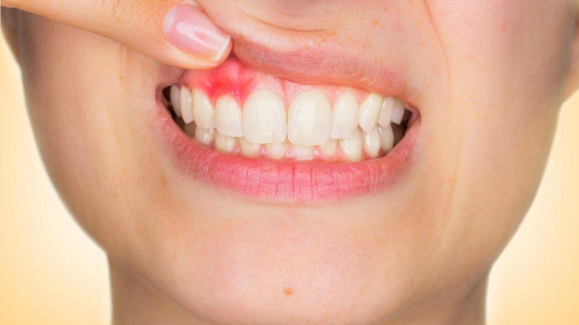 Abscesso dentário: O que é, quais são os sintomas e como tratar?